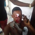 Lady Nabbed After Stabbing Her Boyfriend Over A Phone Call (Graphic Photos)