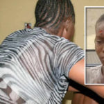 Wicked Madam Cuts Forehead Of Housemaid In Asaba For Refusing To Be Called A Bastard (Photos)