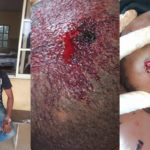 Policemen Assault A Man In Delta, Inflict Injuries On His Head With Gun (Graphic Photos)