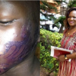 Wicked Stepmother Disfigures 10-Year-Old Boy With Hot Iron