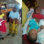 Lady Gives Birth To Conjoined Twins In Benue State (Photos)