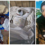 Update: Teenage Girl Who Set Herself Ablaze In Zamfara Has Been Taken To The Hospital (Photos)