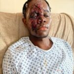 Graphic Photos: See The Evil Thing Some Racist White Men Did To An Innocent Black Teenager In UK