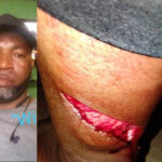 GRAPHIC PHOTOS: Police officer cut wife with machete over cold food, flees