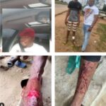 SARS Officers Allegedly Machete Boy's Leg, Extort Money From Him In Delta State (Graphic Photo+Video)