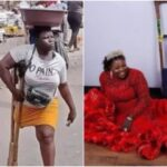 Nigerians React To The Amazing Transformation Of Viral Amputee Lady Selling Water At Oshodi (photos)